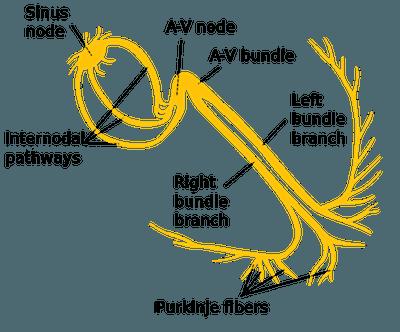 Bundle Branch Blocks (BBBs) 101